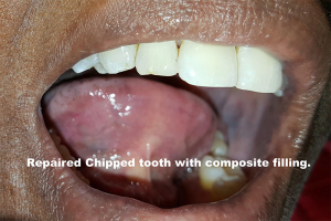 chip_tooth_postop_7_comp_closeup